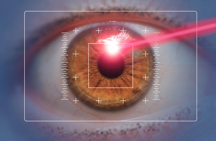 Do LASIK Lasers Affect Surgical Outcomes? The answer may surprise you!