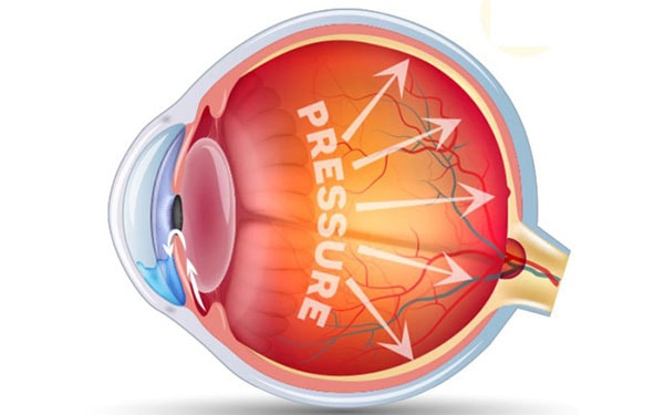Durysta, an exciting new glaucoma treatment, now at Assil Eye Institute