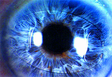 New Clinical Study for ARTISAN® IOL (intraocular lens) now at AEI