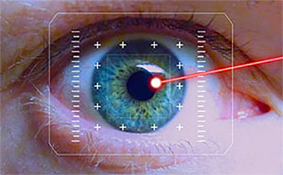 What to expect after LASIK laser eye surgery