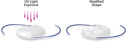 RxSight: the first cataract lens that's customized after surgery!